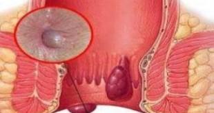 Hemoroid Olduğunuzu Nereden Anlarsınız